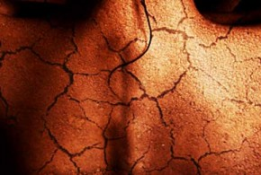 أسباب تمزق أو تشقق الجلد