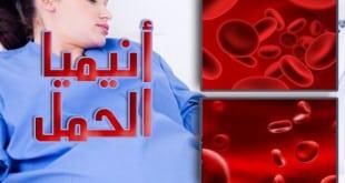أنيميا الحمل .. مفهومها ومحفزات حدوثها والعلاج